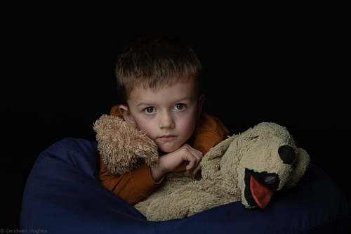 Five-year-old Wrexham boy with unusual and rare disease takes part in photo project to raise awareness
