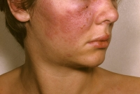 Risk of Systemic Lupus Erythematosus in Patients With ITP